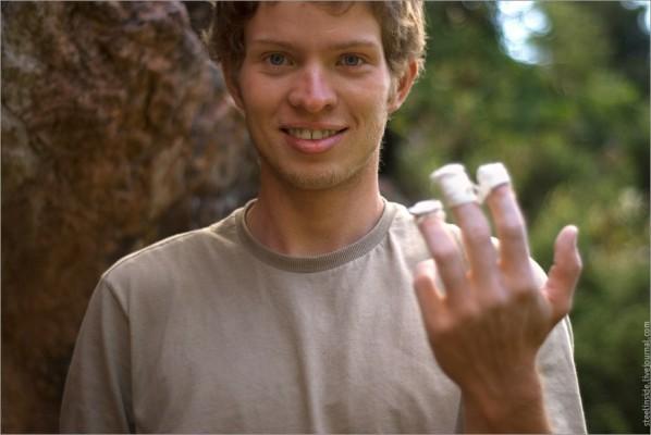 Иван и его стертые пальцы после болдер-сессии.